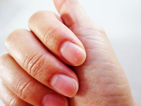 爪 つめ あらわれた 白い 点 白点 幸運 シンボル 人差し指 指 手 中指 薬指 小指 手相 予兆 開運 引き寄せ 幸せ 起こる 嬉しい 出来事 2 星 合図 チャンス 到来 喜び 右 左