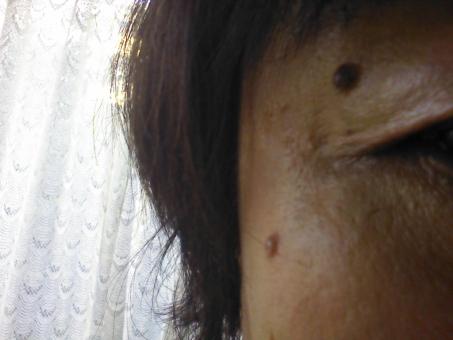 ほくろ 顔 ホクロ 黒子 美容 50代 日本人 女性 女の人 中高年