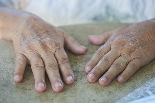 人物 老人 お年寄り 高齢者 シルバー   年老いた手 ハンドパーツ 手 指 ハンド   パーツ 手の表情 年老いた手 皺 しわ   シワ クローズアップ 男性 おじいちゃん おじいさん 両手 手を置く テーブル 正面 指輪 手元 手先 指先
