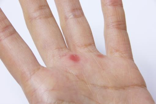 手 内出血 キズ 傷 豆 血豆 力仕事 作業 労働 女性 女性の手 素振り 雪かき ハードワーク お手入れ ケア 痛み 治療 予防 防止 背景素材 手のひら 手の平 掌 ケガ 怪我 スポーツ 力作業 握る 処置
