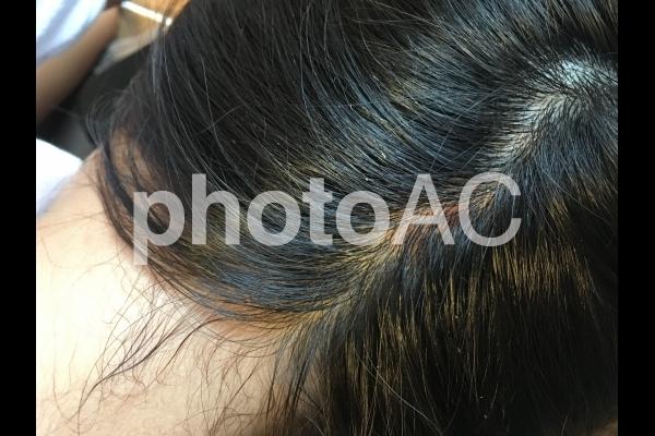 頭皮トラブルの写真