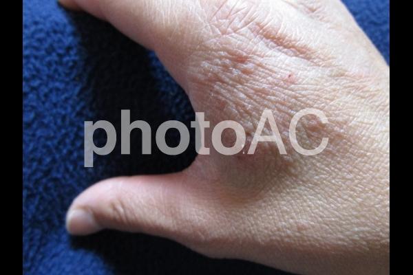 手のかぶれの写真