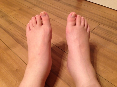 むくみ 浮腫み 妊娠中毒症 妊娠中毒 浮腫んだ足 足 足首 裸足 むくむ 浮腫む ムクミ 病気 妊娠後期 健康 不健康 体調不良