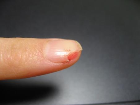 爪のけが つめ けが 包丁 爪切り 調理中のけが