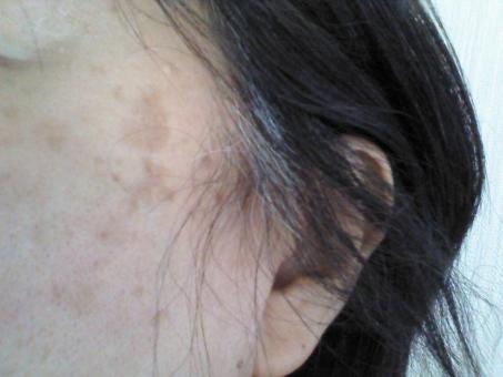 頬のシミ 頬のたるみ 白髪 耳 50代 女性 女の人 中高年 おばさん おばちゃん