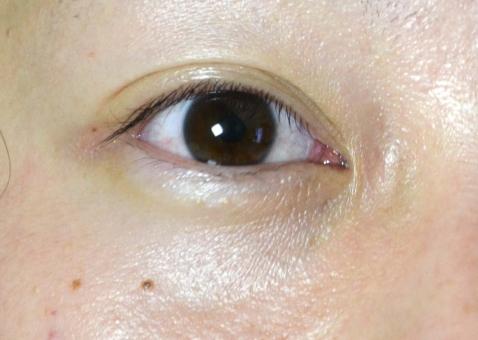 目 眼 瞼 まぶた 目じり めじり まつ毛 瞳 眼球 黒目 白目 二重 一重 隈 涙袋