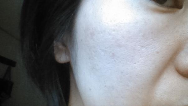 ニキビ ニキビ跡 肌が汚い 汚肌 クレーター でこぼこ 凸凹 毛穴 汚い 穴 ぼこぼこ ボコボコ レーザー治療 しみ シミ 日本人 中年 女性 30代 豊麗線 ほうれいせん ほうれい線 ホウレイ線 たるみ 垂水 シワ しわ 皺