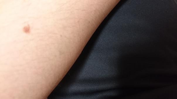 腕 うで 肌 男性 アップ 写真 黒 背景 ムダ毛 毛 ほくろ ホクロ 黒子 脱毛 メンズ エステ メンズエステ エチケット 処理 ムダ毛処理 自己処理 美容