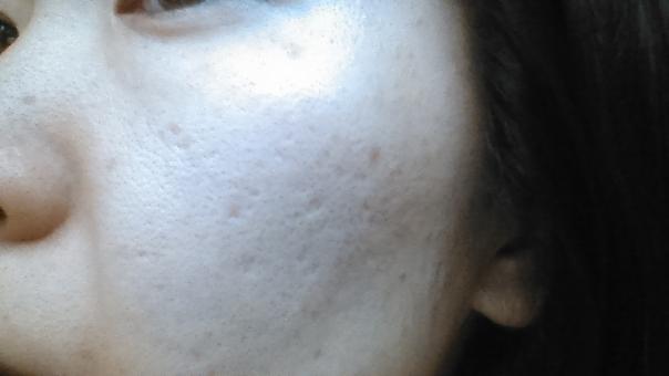 ニキビ ニキビ跡 肌が汚い 汚肌 クレーター でこぼこ 凸凹 毛穴 汚い 穴 ぼこぼこ ボコボコ レーザー治療 しみ シミ 日本人 中年 女性 30代