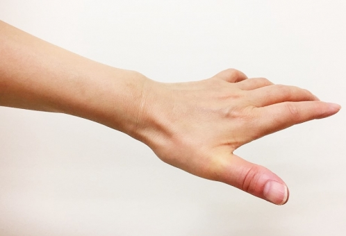 腱鞘炎の写真素材|写真素材なら「写真AC」無料(フリー)ダウンロードOK