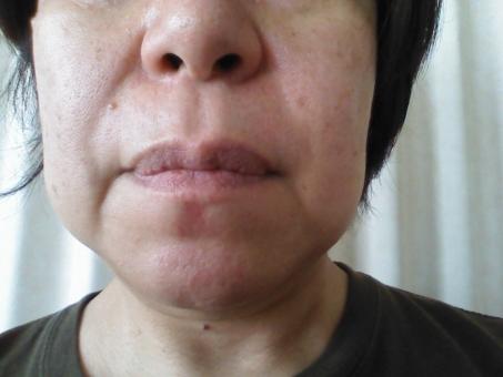 高齢者 中高年 中年 年寄り おばあさん おばさん シニア 日本人 女性 女の人 お母さん 大人 ほうれい線 美容 健康 50代 Japan Japanese アジア人 年寄り しわ シミ 鼻 口 頬 ほくろ 首 鼻の穴 肌 皮膚