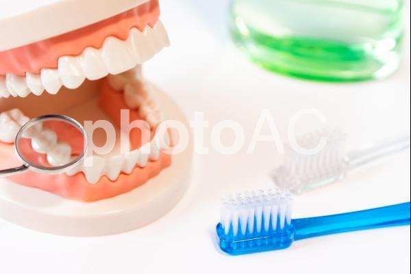 歯周病の写真