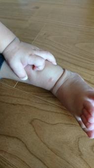 赤ちゃん  虫刺されの写真