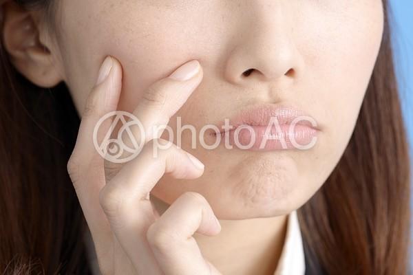 吹き出物が気になる女性9の写真