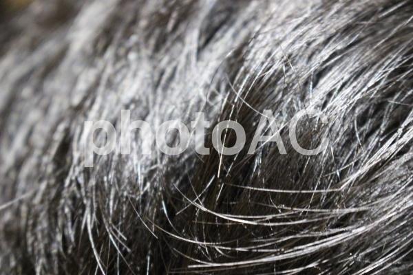 男性の毛髪の写真