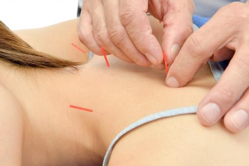 鍼灸の写真素材|写真素材なら「写真AC」無料(フリー)ダウンロードOK
