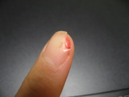 つめのケガ 爪のケガ 包丁 指 調理中のけが